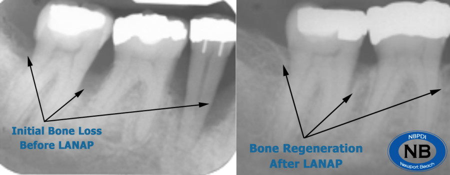 Bone Regeneration Before and After using LANAP Laser Procedure